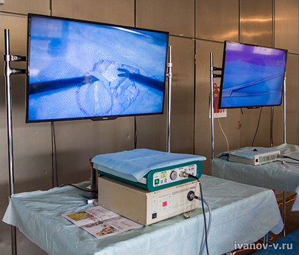 операция (лапароскопия) на экране